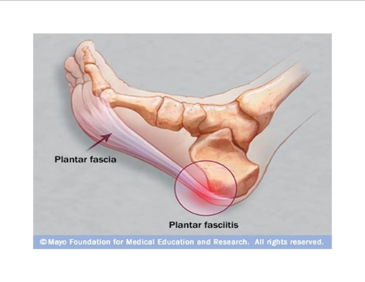 Plantar Fasciitis Barefoot Running Shoes
