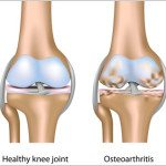knee-arthritis-running