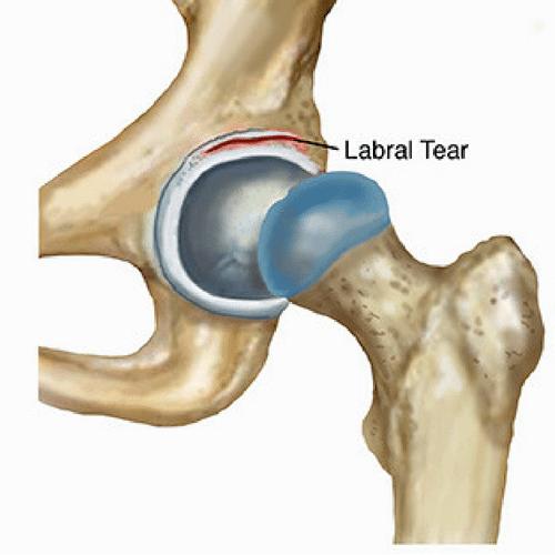 Labral tear image