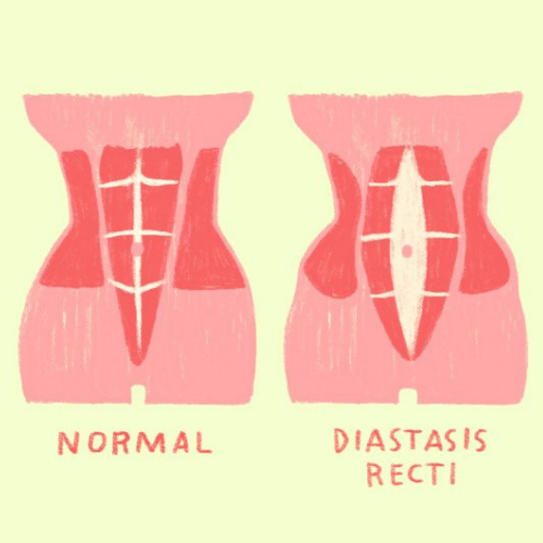 Diastasis Recti Blog