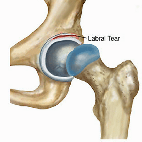 Hip Labral- Blog Talk
